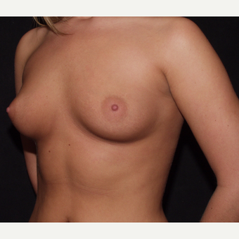 18-24 year old woman treated with Breast Implants before 3602781