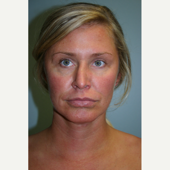 35-44 year old woman treated with Neck Lift before 3569582