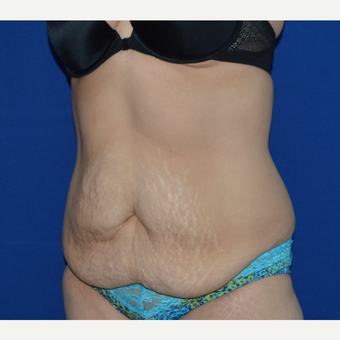 45-54 year old woman treated with No-Drain Tummy Tuck before 3655759