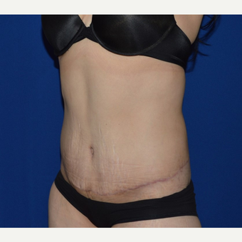 45-54 year old woman treated with No-Drain Tummy Tuck after 3655759