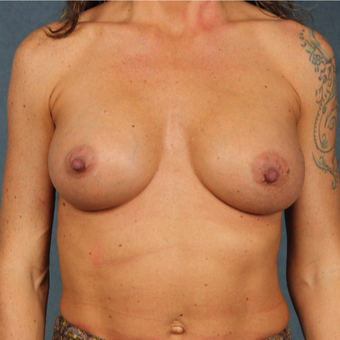 42 year old female with form stable cohesive Sientra silicone gel breast implants after 2998126