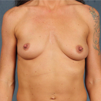 42 year old female with form stable cohesive Sientra silicone gel breast implants before 2998126