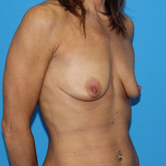45-54 year old woman treated with Breast Lift with Implants before 3201587