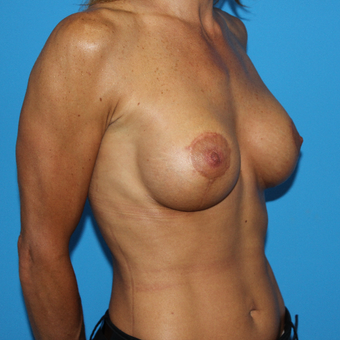 45-54 year old woman treated with Breast Lift with Implants after 3201587