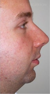 18-24 year old man treated with Chin Implant before 3264490