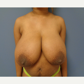 55-64 year old woman treated with Breast Reduction before 3747763