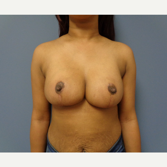 55-64 year old woman treated with Breast Reduction after 3747763