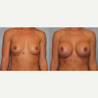 25-34 year old woman treated with Breast Augmentation before 3440378