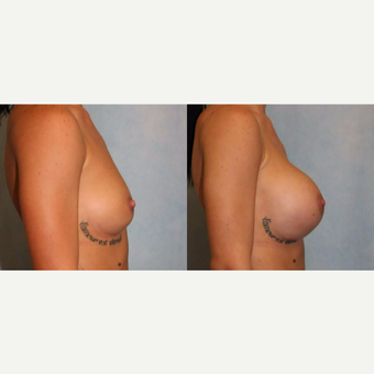 25-34 year old woman treated with Breast Augmentation after 3440378