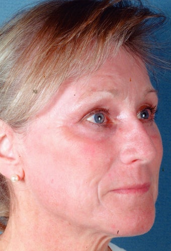 Full face laser skin resurfacing