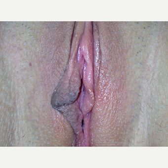 18-24 year old woman treated with Labiaplasty before 3400989