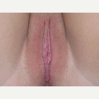 18-24 year old woman treated with Labiaplasty after 3400989