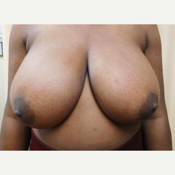 18-24 year old woman treated with Breast Lift before 3749587