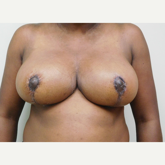 18-24 year old woman treated with Breast Lift after 3749587