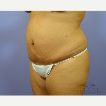 25-34 year old woman treated with Tummy Tuck before 3415782