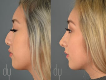 18-24 year old woman treated with Asian Rhinoplasty before 2465768