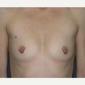 35-44 year old woman treated with Nipple Surgery before 3455379