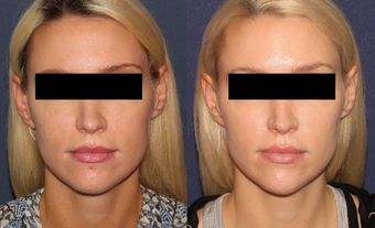 25-34 year old woman treated with Voluma