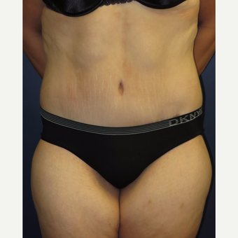 25-34 year old woman treated with Weight Loss after 3224311