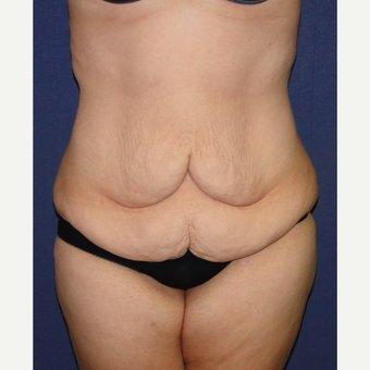 25-34 year old woman treated with Weight Loss before 3224311