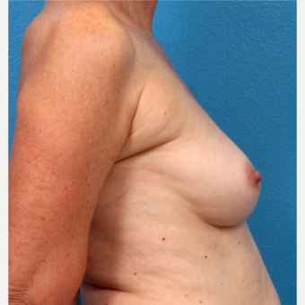 55-64 year old woman treated with Fat Transfer before 3218978