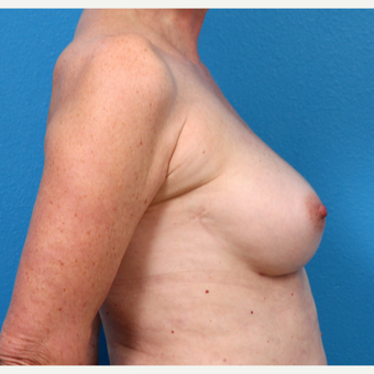 55-64 year old woman treated with Fat Transfer after 3218978