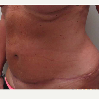Tummy Tuck for this 61 Year Old Woman after 3092668