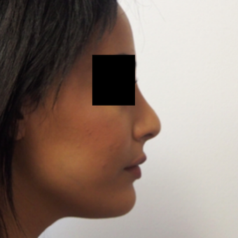 18-24 year old woman treated with Rhinoplasty after 3743275