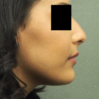 18-24 year old woman treated with Rhinoplasty before 3743275