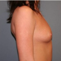 25-34 year old woman treated with Breast Implants before 3299875