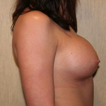 25-34 year old woman treated with Breast Implants after 3299875