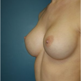 Breast Augmentation after 3720776