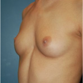 Breast Augmentation before 3720776