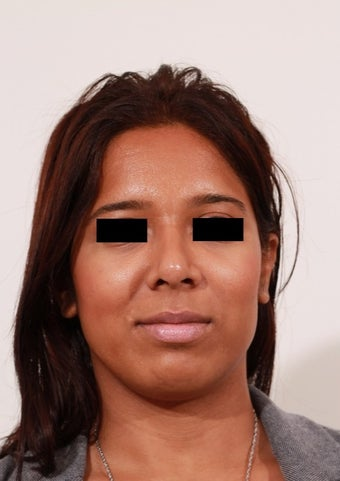 27 year old female who underwent a revision rhinoplasty and chin implant.