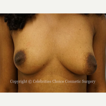25-34 year old woman treated with Breast Reconstruction before 3768555