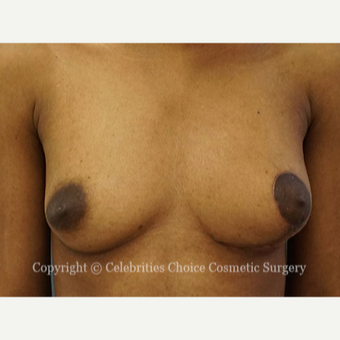 25-34 year old woman treated with Breast Reconstruction after 3768555