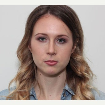 25-34 year old woman treated with Rhinoplasty after 2678104