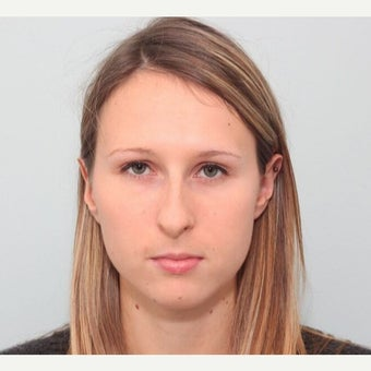 25-34 year old woman treated with Rhinoplasty before 2678104
