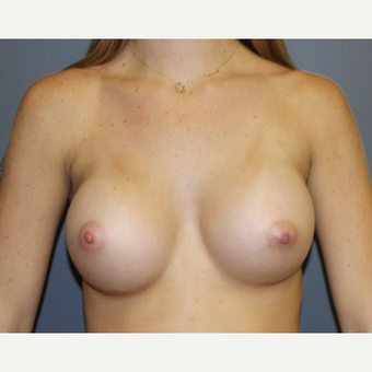 Breast Augmentation after 3370160
