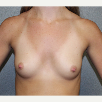 Breast Augmentation before 3370160