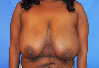 35-year-old woman treated with Breast Lift before 3326239