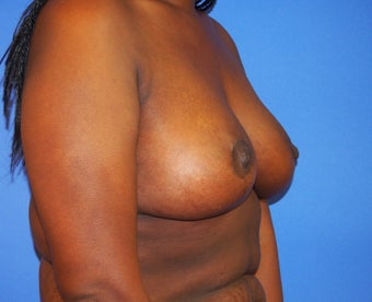35-year-old woman treated with Breast Lift 3326239