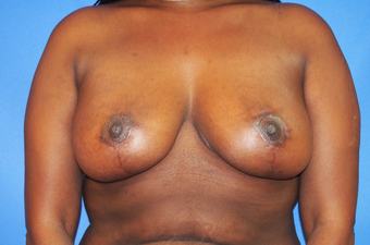 35-year-old woman treated with Breast Lift after 3326239