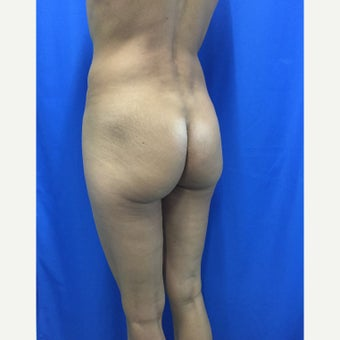 35-44 year old woman treated for Butt Augmentation with Implants before 1852159
