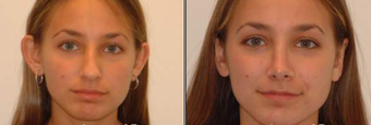 Otoplasty and Rhinoplasty before 95867