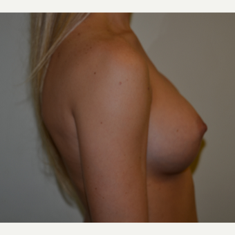 325cc Moderate Plus Profile Silicone Cohesive Gel Implants after 3840019