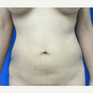 Liposuction before 3094146