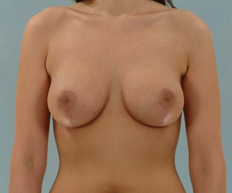Breast Lift after 267726