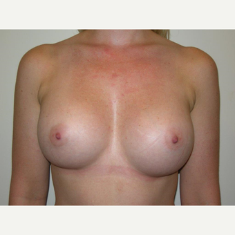 25-34 year old woman treated with Breast Augmentation after 3239249