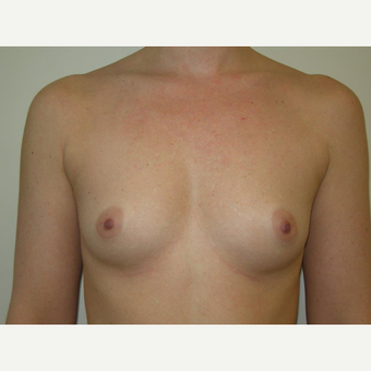 25-34 year old woman treated with Breast Augmentation before 3239249